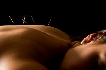 Acupuncture-Dublin